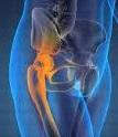 joint pain,osteoarthritis,anti-aging